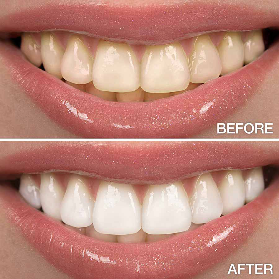 Cosmetic Treatments - Tooth Whitening