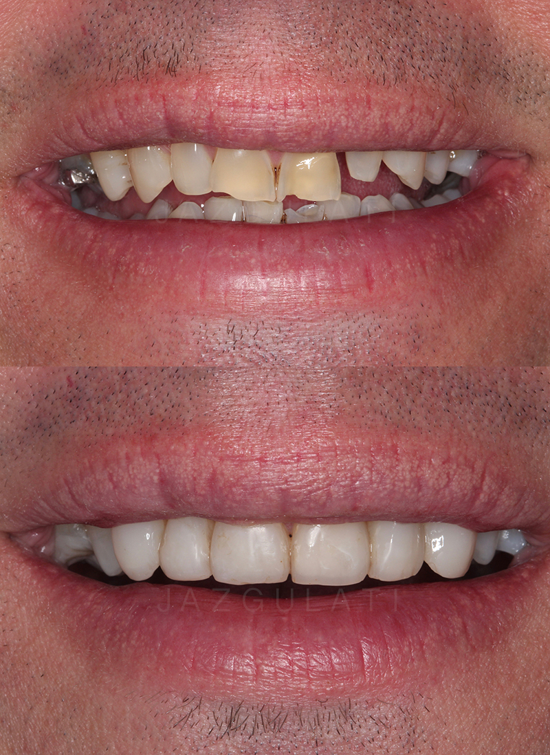 Anterior Composite Fillings Example