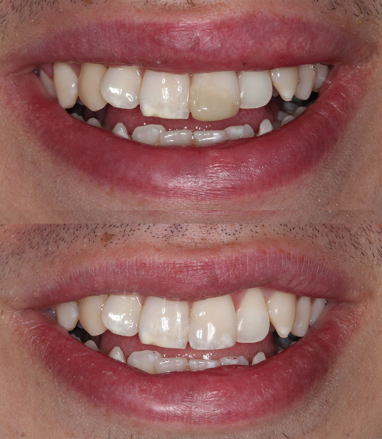 Composite Fillings Example