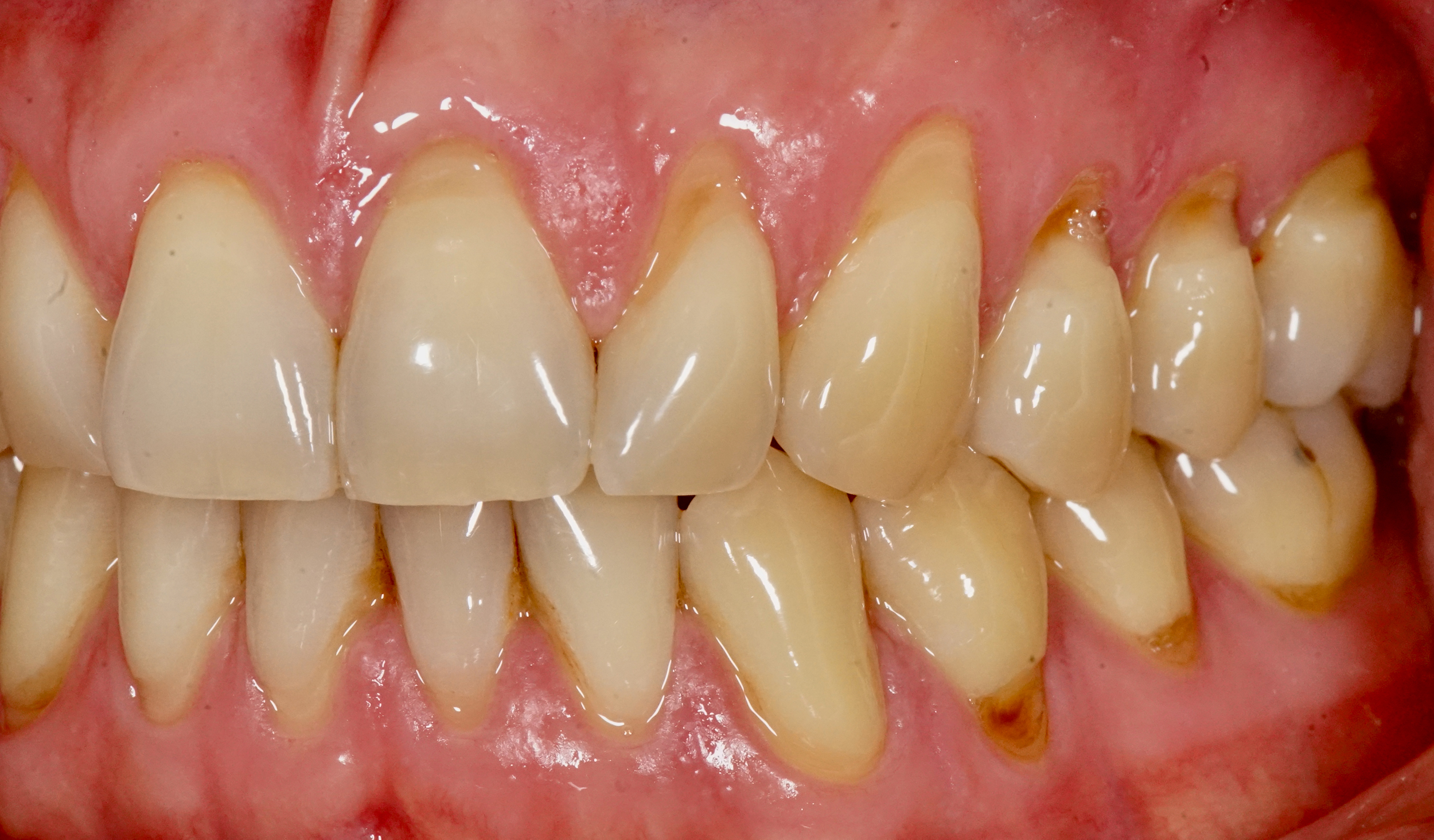 Composite Fillings - Before